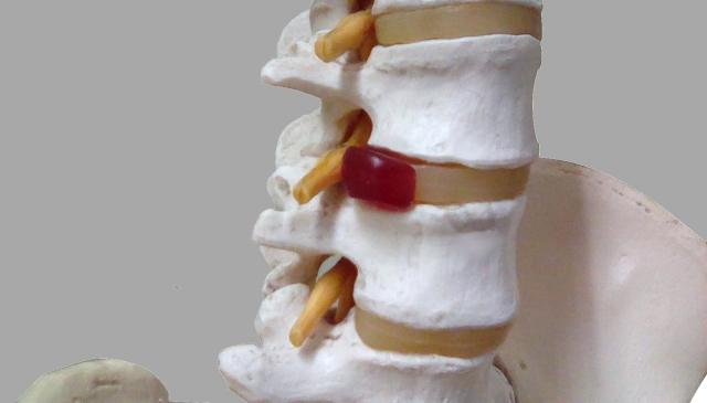 椎間板ヘルニアのイメージ